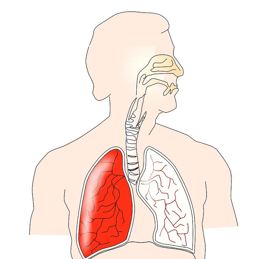 咳や痰がでるメカニズムと抑える薬