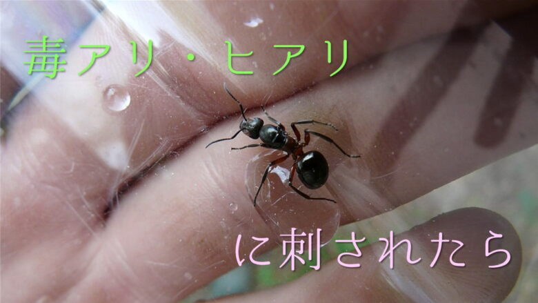 蟻に噛まれたら?アリは噛んで刺す?チクチク痛みの処置