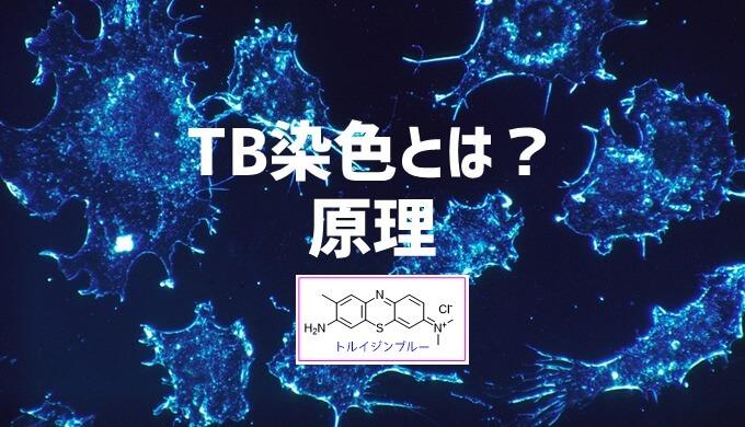 トルイジンブルー染色 TB染色の原理とは